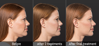 What to Expect with KYBELLA® | KYBELLA®