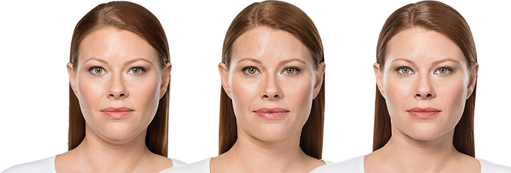 KYBELLA® Before and After | KYBELLA®