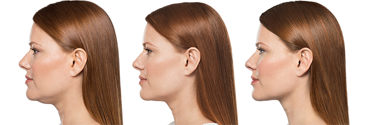 How to improve your side profile
